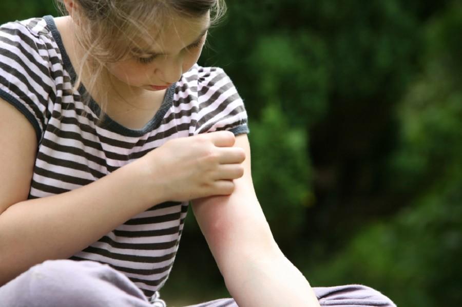 Средства для защиты от укусов насекомых обзор эффективных вариантов