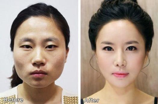 Как сделать пластическую операцию в южной корее