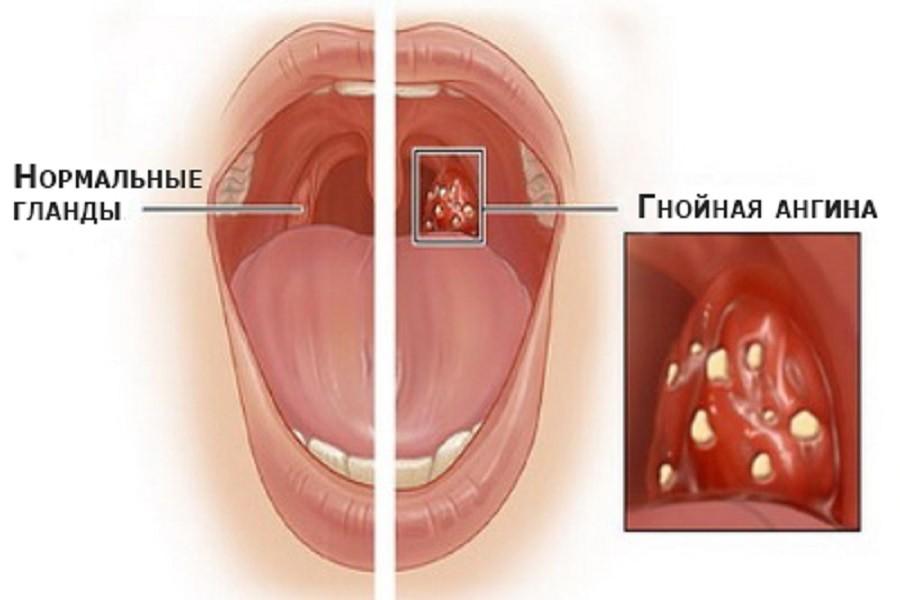 хронический простатита осложнения