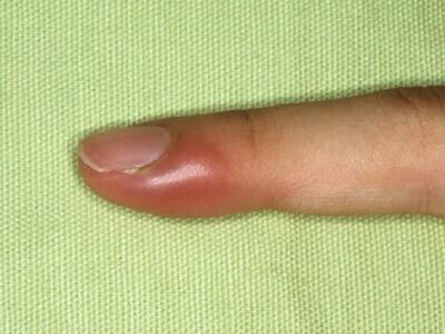 Воспалился палец на ноге около ногтя как лечить