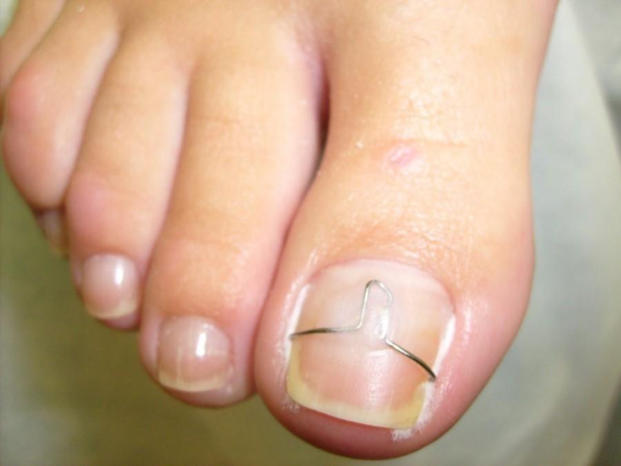 Виды грибка на ногте ноги